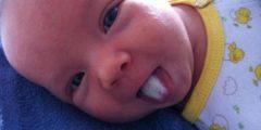 عند الرضع 240x120 - علاج  الفطريات عند الرضع