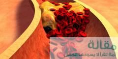 22 1 240x120 - وقاية و اسباب و أعراض ارتجاع المني