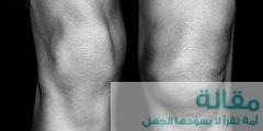 al3enah blthat 377 1465345262 240x120 - اسباب تورم الرجلين